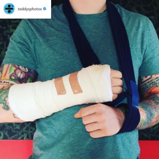 Ed Sheeran in cycling accident