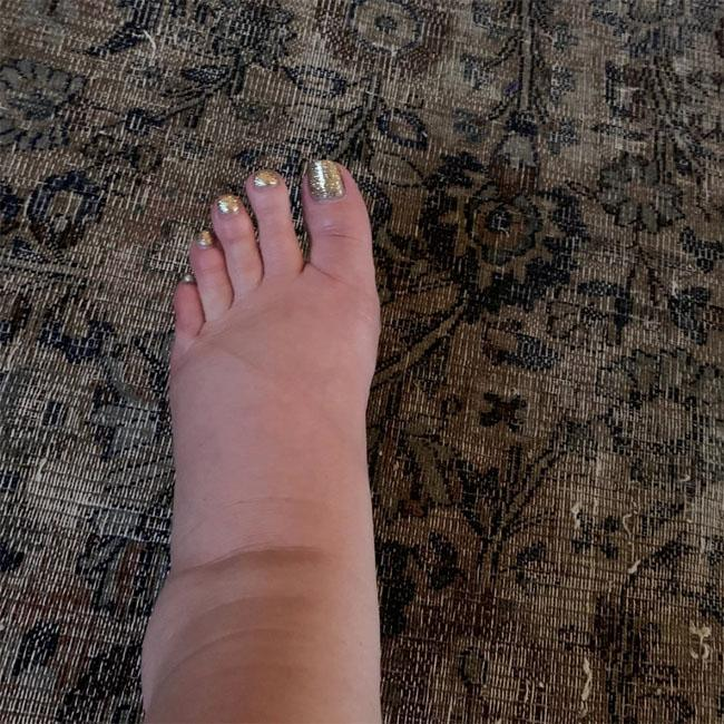 Jessica Simpson asks Instagram for swollen feet remedies