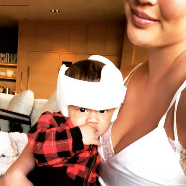 Chrissy Teigen's son no longer needs helmet