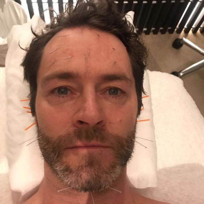 Howard Donald has acupuncture to cure binge eating